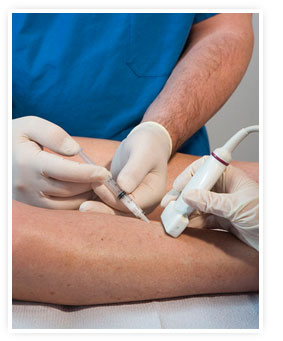 av Ultrasound_Guided_Sclerotherapy