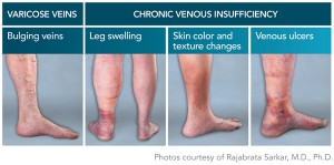 Athens Thoracic Specialist, thoracic procedure, thoracic surgery, varicose veins, chronic venous insufficiency