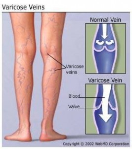 Athens Thoracic Specialist, thoracic procedure, thoracic surgery, varicose veins